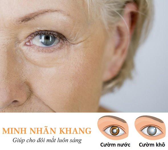 Mắt bị cườm khô cườm nước – Thông tin cần nắm rõ để tránh xa mù lòa